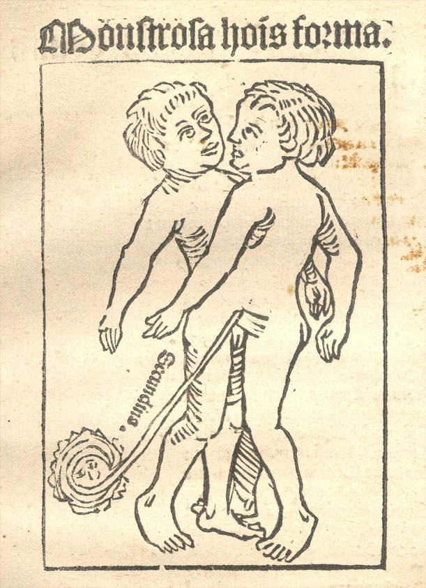 Илустрација из 1499. године у Carmen heroicum de partu monstrifero Јакоба Лохера (1471—1528)