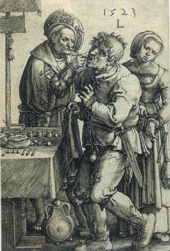 **Графика Лукаса Лајдена из 1523. године**. Графика приказује зубовађу док обавља свој посао, док његова сарадница искоришћава прилику и краде пацијенту кесу с новцем.